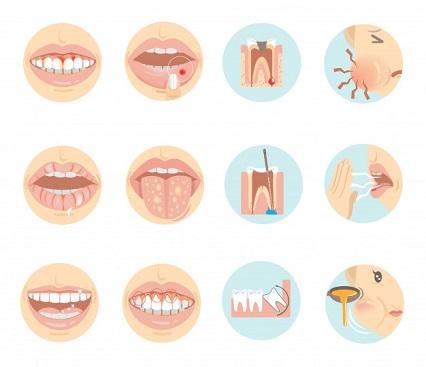 picture describing dental problems